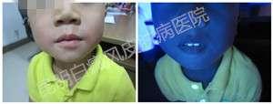 4岁男孩双嘴角白斑
