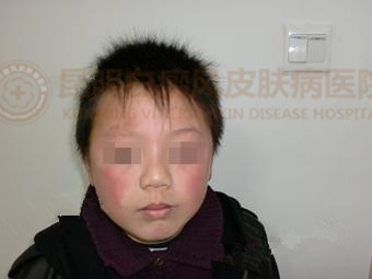 8岁男孩右侧眉上侧白斑两个月治愈